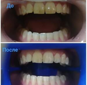 b Топ 10 частных стоматологий  b   где можно сделать отбеливание зубов дента-лав2