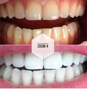 b Топ 10 частных стоматологий  b   где можно сделать отбеливание зубов стоматест