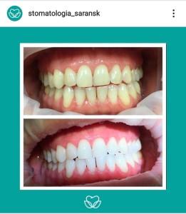 b Топ 10 частных стоматологий  b   где можно сделать отбеливание зубов центр-стоматологии3