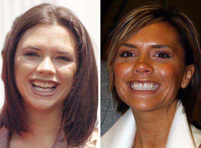Зуб за nbsp зуб  топ 10   стоматологических клиник    Саранска Vic_Beckham